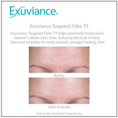 exuviance targeted filler reviews